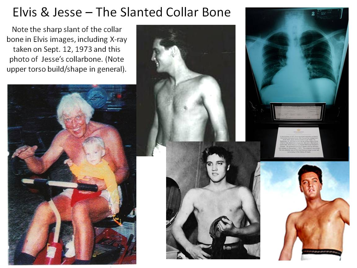 Elvis-Jesse-Slanted-Collar-Bone