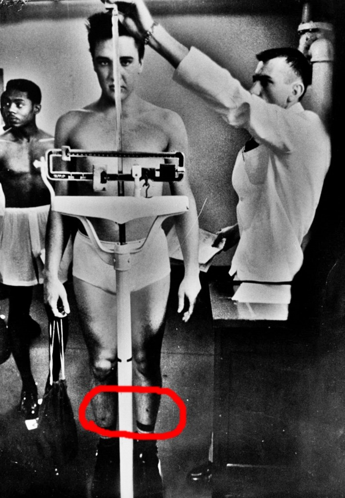 Singer/Army Pvt. Elvis Presley clad only in his skivvies as he stands on scale while Army doctor measures his height at 6 1/2 at pre-induction physical examination at Kennedy Veterans Hospital. (Photo by Don Cravens/The LIFE Images Collection/Getty Images)