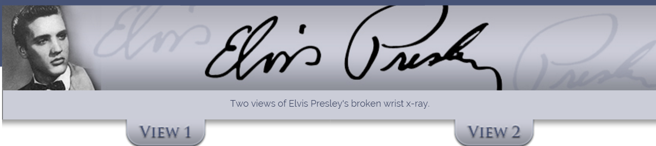 Elvis Presley s wrist X Ray   Two Views header
